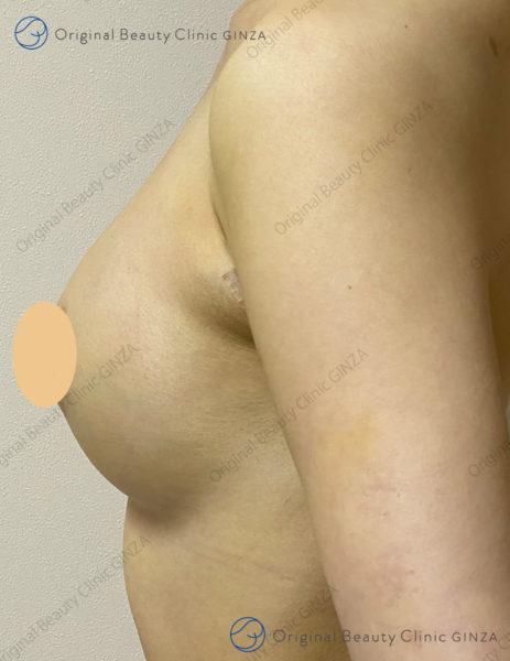 横向きヒアルロン酸豊胸術後の症例写真